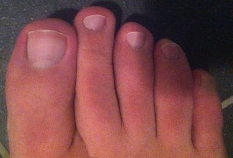 If your second toe is longer than your big toe, you have Morton's toe
