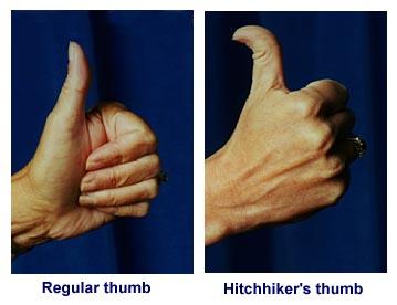 Straight thumb versus hitchhiker's thumb