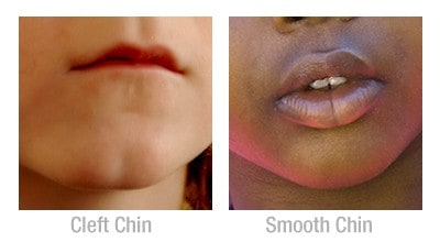Smooth chin versus cleft chin