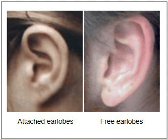 Attached versus free earlobes