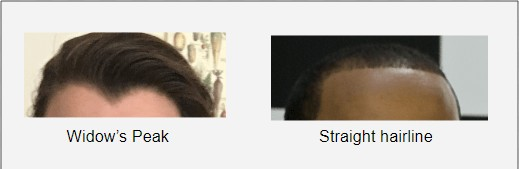 Do you have a straight hairline or do you have widow's peak