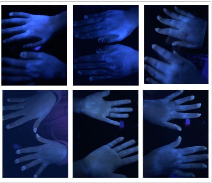 Students' hands after washing.  The Glo Germ shows all the spots they missed.  Commonly missed spots are around jewelry, under fingernails, around nail beds, and on regions of dry skin. This activity helps students see how well they wash their hands